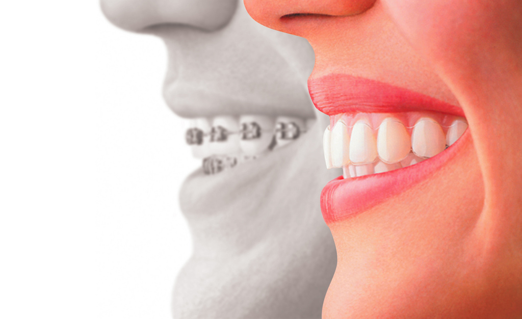 Dental Treatments Ballincollig