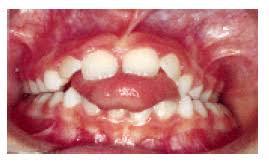 Anterior Tongue Thrust