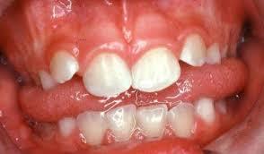 Bi-lateral Tongue Thrust:
