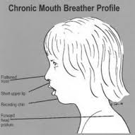 Mouth Breather Symptoms