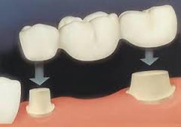 Dental Bridge Treatment Ballincollig
