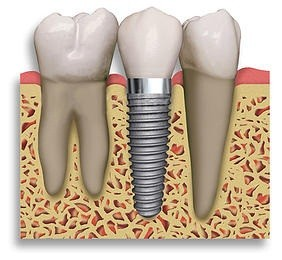 Dental Implants Ballincollig