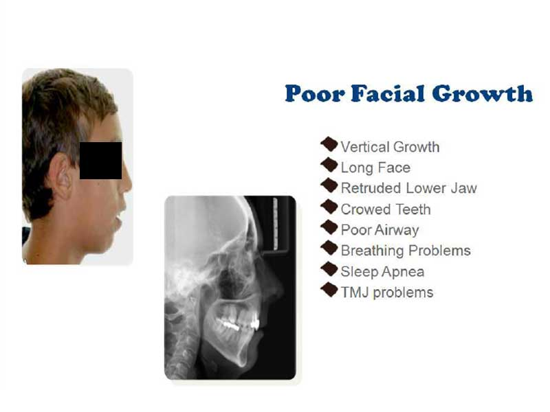Poor Facial Growth Consequences